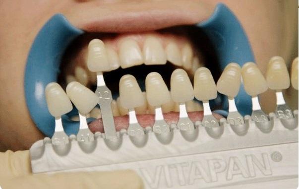 Цвета зубов шкала