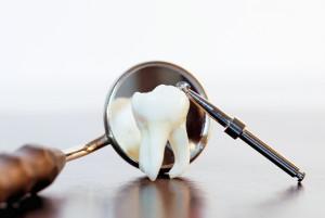 4 зуб мудрости