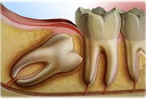 udalenie-zuba-mudrosti-tsena
