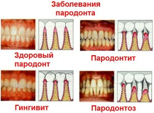 zabolevanija_parodonta