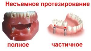 nesemnoe_protezirovanie_polnoe_i_chastichnoe