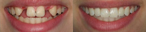 implantaciya-zubov