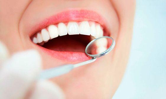 Офісне відбілювання зубів: особливості процедури