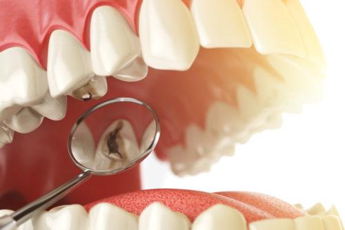 Кариес зубов: причины возникновения и лечение