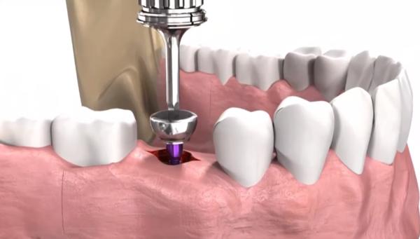 Имплантация зубов: особенности процедуры