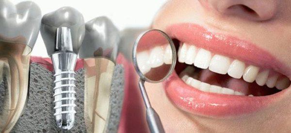 Якісна імплантація зубів: синус-ліфтинг