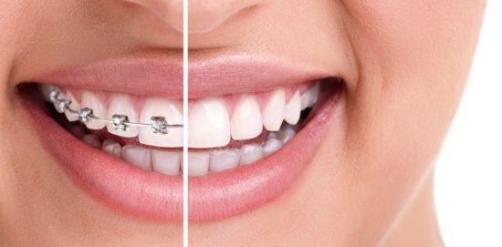 Сучасна ортодонтія: від вирівнювання зубів до лікування хропіння