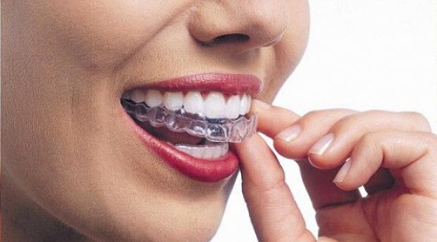 Выравнивание зубного ряда: элайнеры и каппы