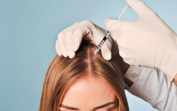 Мезотерапия – эффективное средство от выпадения волосы